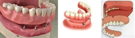 protesi dentarie mobili di ultima generazione protesi dentarie sostenute da impianti