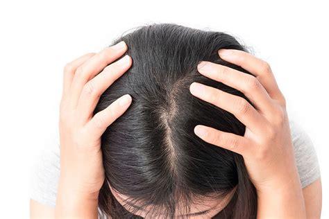 picores en el cuero cabelludo causas cuero cabelludo irritado y sensible el de meritxell