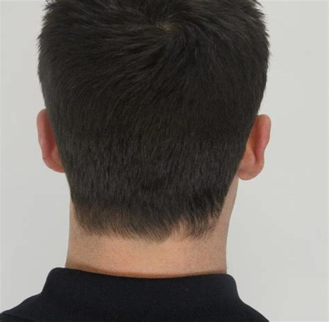 natural hair thin crown best treatment for thinning crown and receding hairline