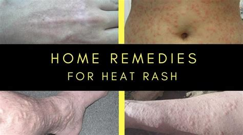how to get rid of heat rash home remedies for prickly heat