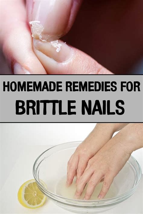 7 Remedies For Fragile Fingernails by Remedies For Brittle Nails Iwomenhacks