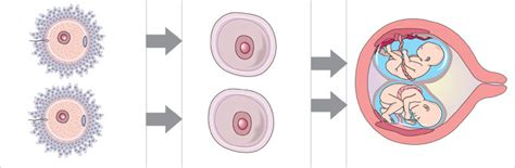 diagram of how identical are formed triplets and other multiples womenshealth gov