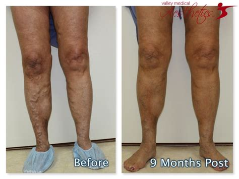 8 Symptoms Of Varicose Veins by 22 Best Evlt Varicose Vein Treatment Results Images On