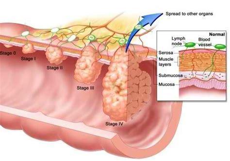 10 causes of blood in stool pooping blood alarming