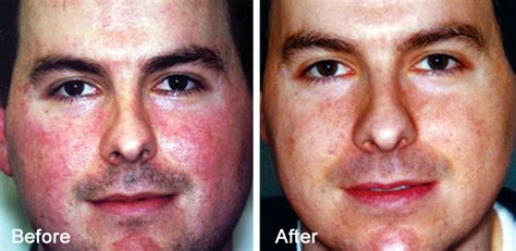 e one ipl session before and after on man and woman face melanotan2info