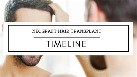 neograph timeline neograft hair transplant timeline the toronto hair
