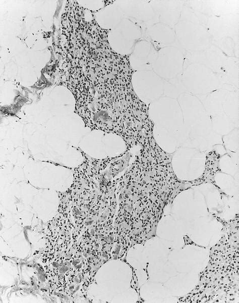 Capillary Hemangioma Pathology Outlines by Pathology Outlines Hemangioma And Angiomatosis Of Breast