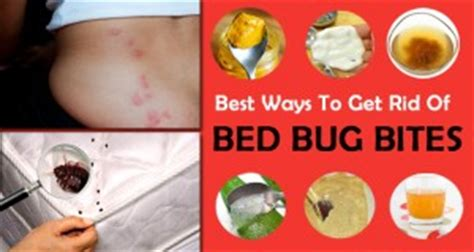 cream for bed bug bites 8 simple tricks to get rid of crickets from your home