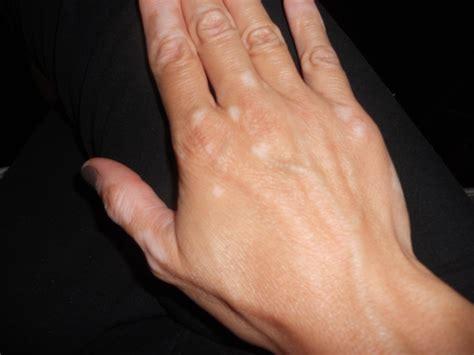 vitiligo images hairskinbody soul for fabulous hair skin and food