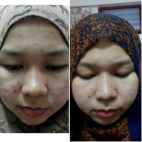 Sabun Nuraysa testimoni ajaib sabun collagen nurraysa nurraysa