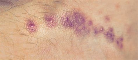 scabies vs bed bug bites image gallery scabies appearance