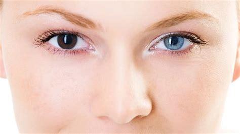 two different colored meaning what is heterochromia iridum iridis