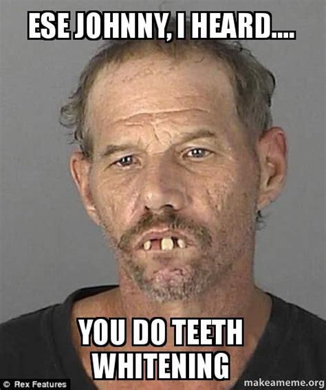 Johnny Meme - ese johnny i heard you do teeth whitening make a meme