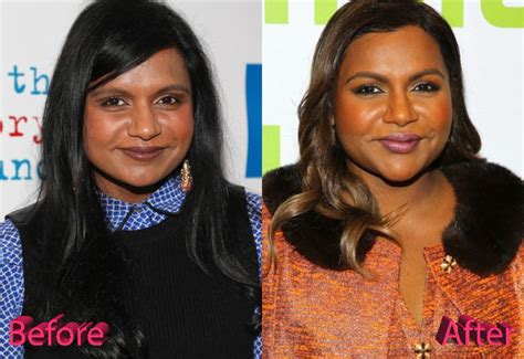 mindy kaling jobs mindy kaling plastic surgery a project done well