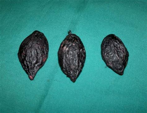 Berapa Minyak Zaitun Yg Asli badai mencak kelambit biru buah jafaron atau zafran yg asli