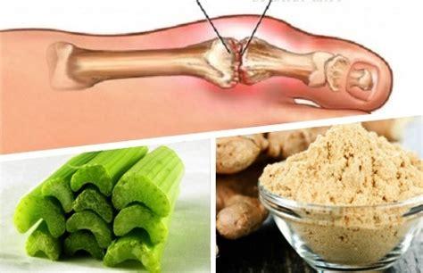 uricemia alimentazione rimedio allo zenzero e sedano per eliminare i cristalli di