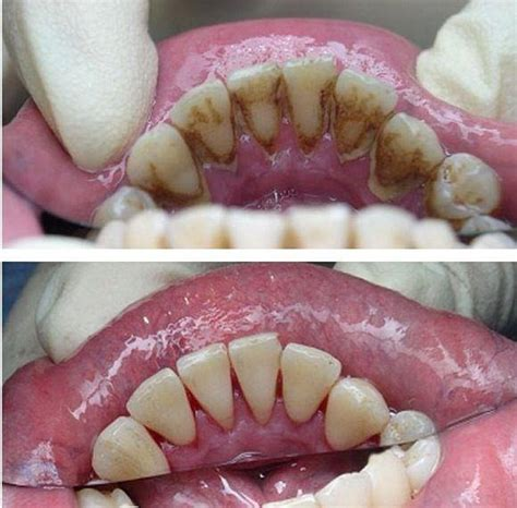Mba After Dentistry by Periodontal Disease Dentists