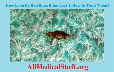 how long do bed bugs last difference between nephrotic syndrome and nephritic