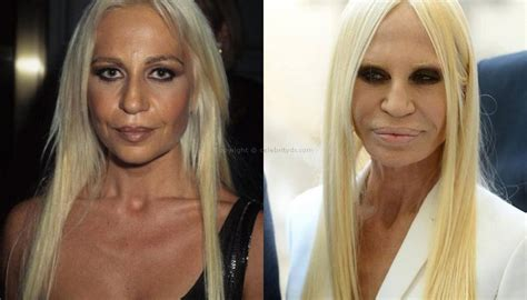 The Real Donatella by Lip Implants Dr