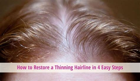 how to fix a womans thinning hair on top how to restore a thinning hairline