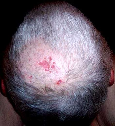 i want to see the shingled back of short hairstyles scalp dermatomes related keywords scalp dermatomes long