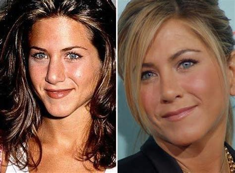 Did Aniston Get Implants by 20 Nose You Won T Believe The