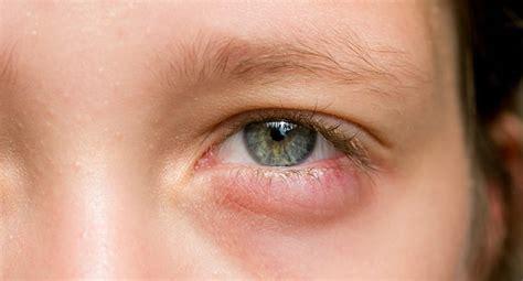 has swollen eye you woke up with swollen or eyelids don t panic silverstein eye centers
