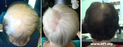 hair grower in the philippines asami hair grower philippines the best hair of 2018