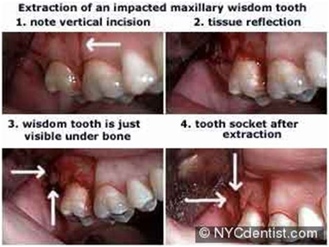 wisdom teeth extraction impacted wisdom tooth removal