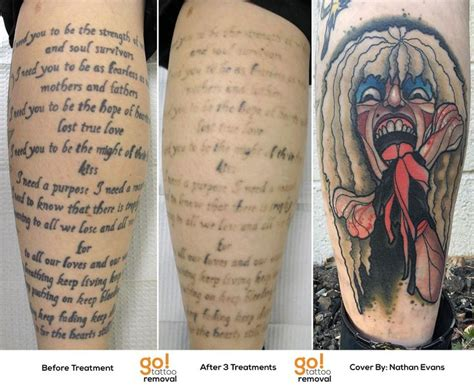 how good is tattoo removal 96 best removal to cover up images on