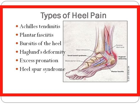 in heel of foot how to get rid of plantar fasciitis