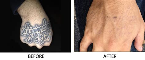 tattoo prices long island before after photos tattoo removal long island