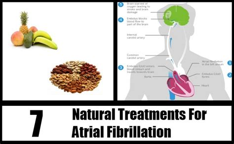 Detox And Afib by Treatments For Atrial Fibrillation How To Treat