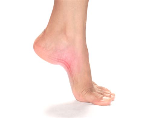 plantar fasciitis the causes treatments foot solutions