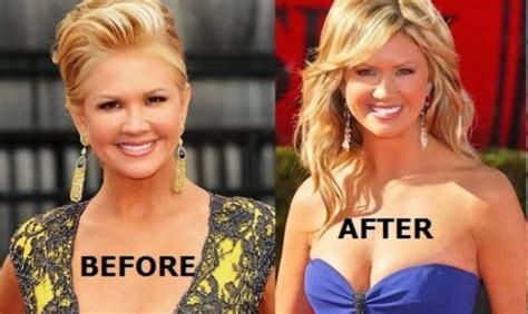 nancy odell plastic nancy o dell plastic surgery before and after photos