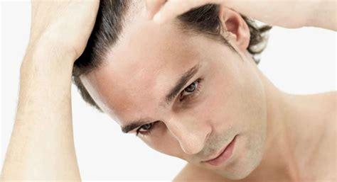 new hair growth at forehead hairline difficult to style bangs everything you need to know about male hair loss the