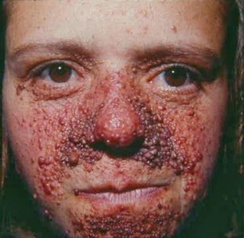 imagenes de narices raras el hospital puerta de hierro majadahonda atender 225 a