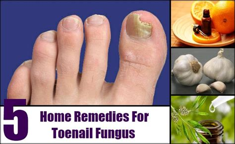 5 tips on home remedy toenail fungus treatments