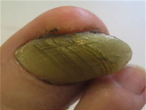 Damaged Toenail Bed by Thickened Toe Nails 3