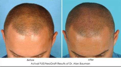 minoxidil before and after male rogaine only before and after www pixshark com images
