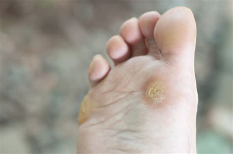 warts wart removal tips the complete wart removal guide