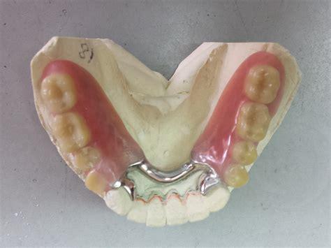 protesi mobile parziale protesi mobile dental tecnica