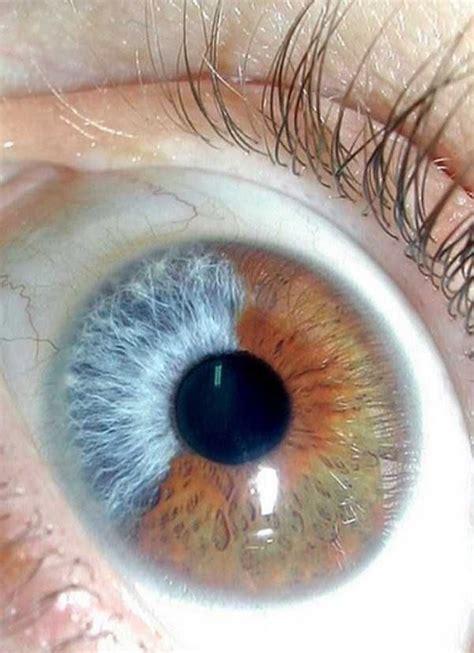 imagenes de ojos normales tipos de ojos muy poco comunes 191 tu los tienes as 237