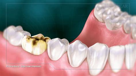 single crown impression fort worth dentist