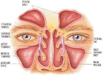 sinus diagram sinuses sinusitis rhinosinusitis defined aaaai