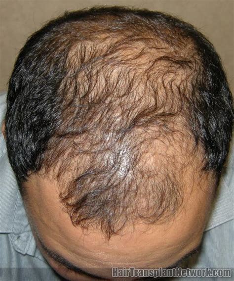 rogaine hair loss pattern if you are suffering from male pattern baldness and would