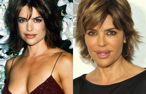 lisa rinna looks terrible tara reid 10 hot celebrities who destroyed their looks