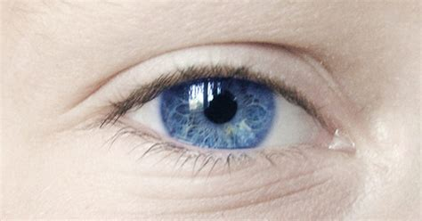 white discharge from s eye causes of eye white discharge livestrong