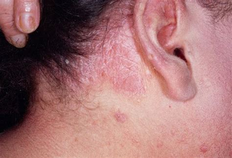 Obat Scabies Semprot Well types of psoriasis pictures and treatments
