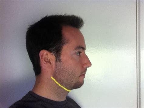 Weak Chin Men | small chin weak jaw style neckline advice beard board
